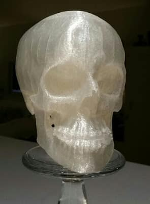 3D Printed Macrognathism