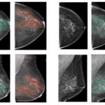 Inteligência Artificial é usada para detectar câncer de mama
